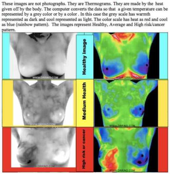 thermography_