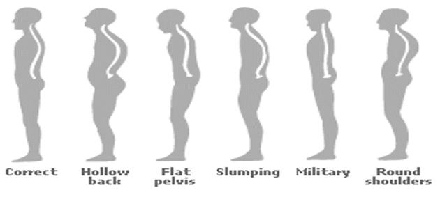 posture chiropractor  Wash DC