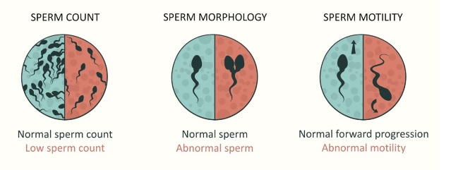 categories of sperm modified-1