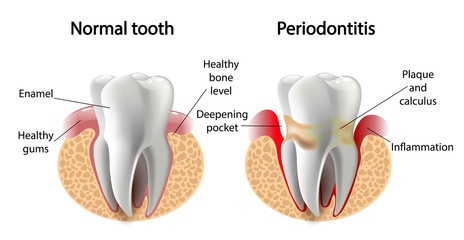 What You Should Know About Periodontal (Gum) Disease